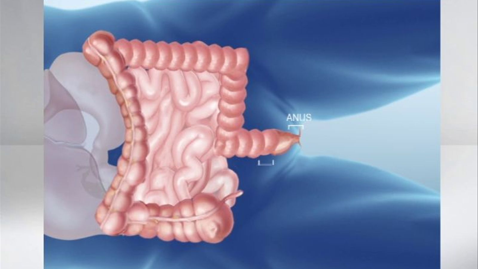 Operació pionera a l'Hospital Clínic: extracció del còlon sencer per l'anus