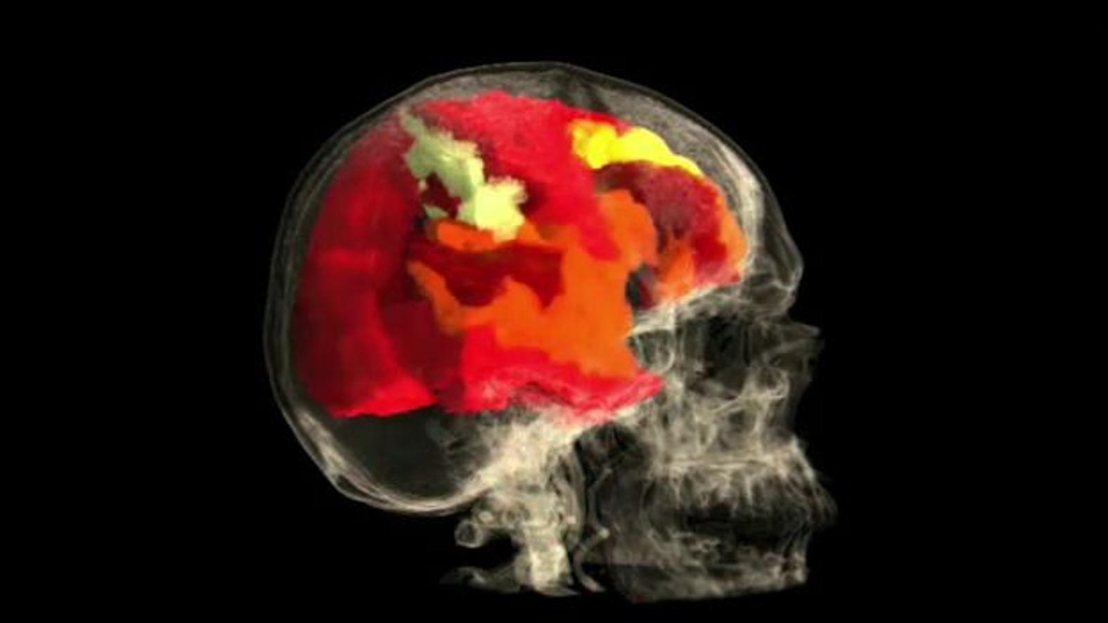 Una animació en què es pot veure l'efecte de l'orgasme femení sobre el cervell