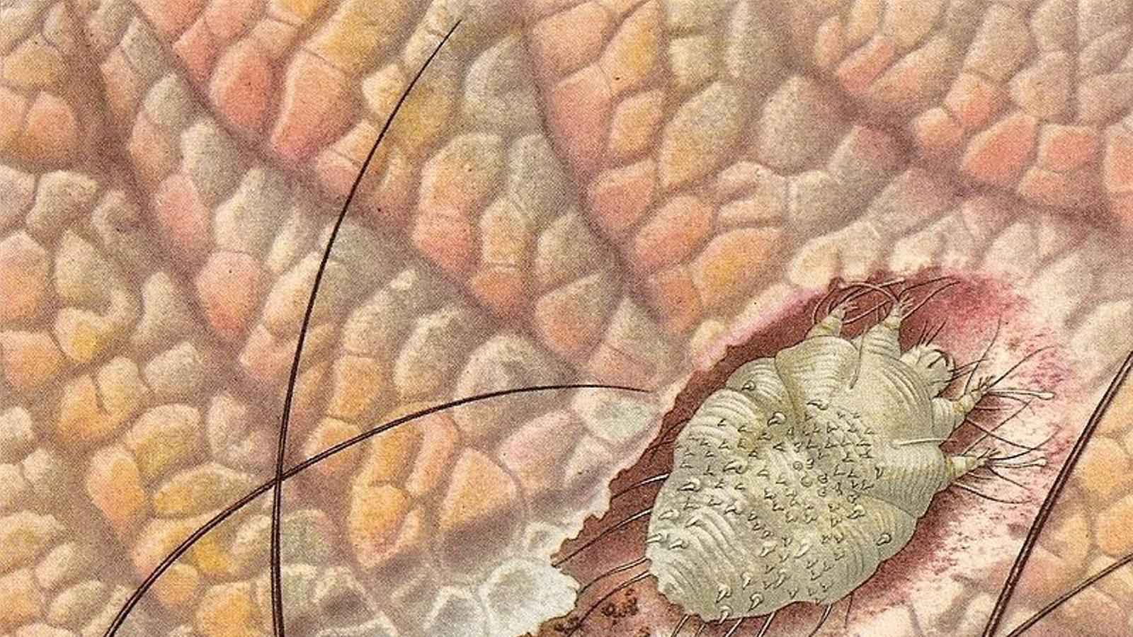 Què és la sarna? Com es contagia i com es tracta?