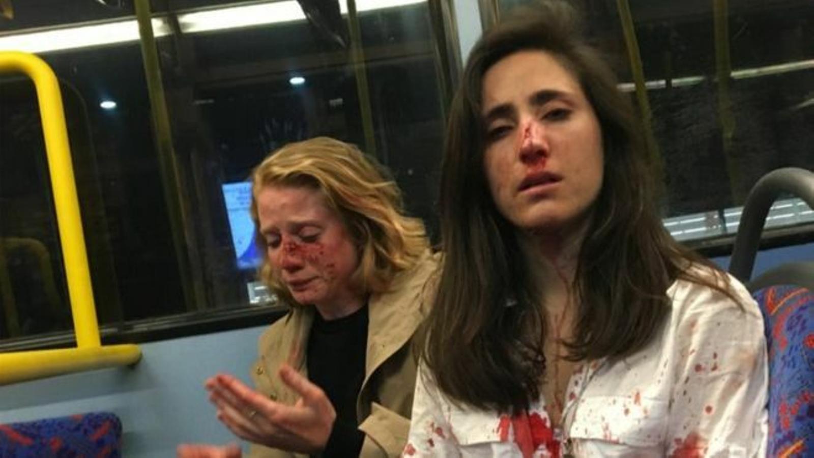 Imatge que una de les joves agredides va publicar al seu compte personal de Facebook per denunciar l'atac.