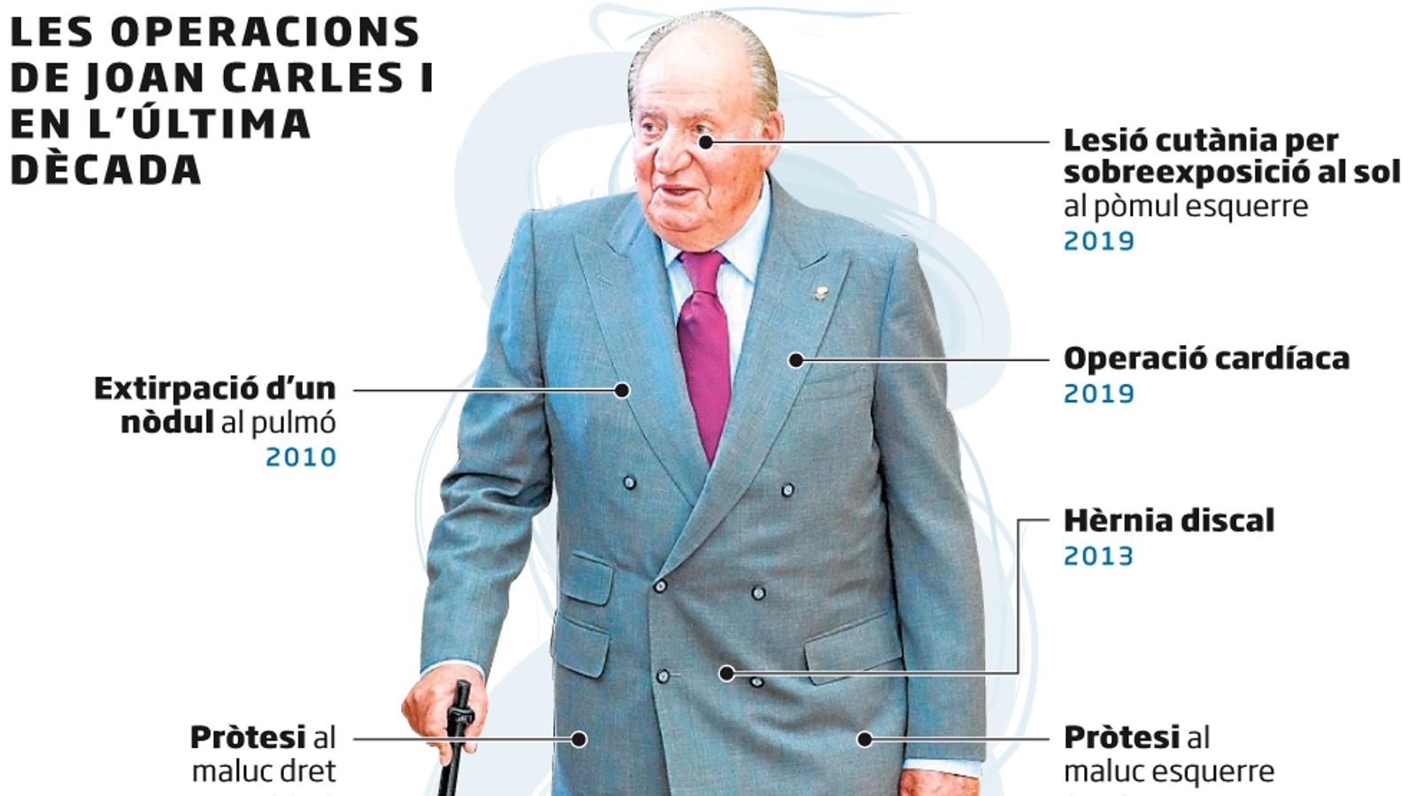 Joan Carles I serà operat del cor dissabte
