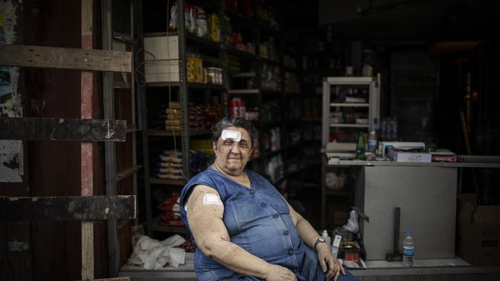 Amb blaus a la cara i benes al cap, Sijan Deikian continua treballant a la seva botiga, que va quedar seriosament malmesa per l'explosió
