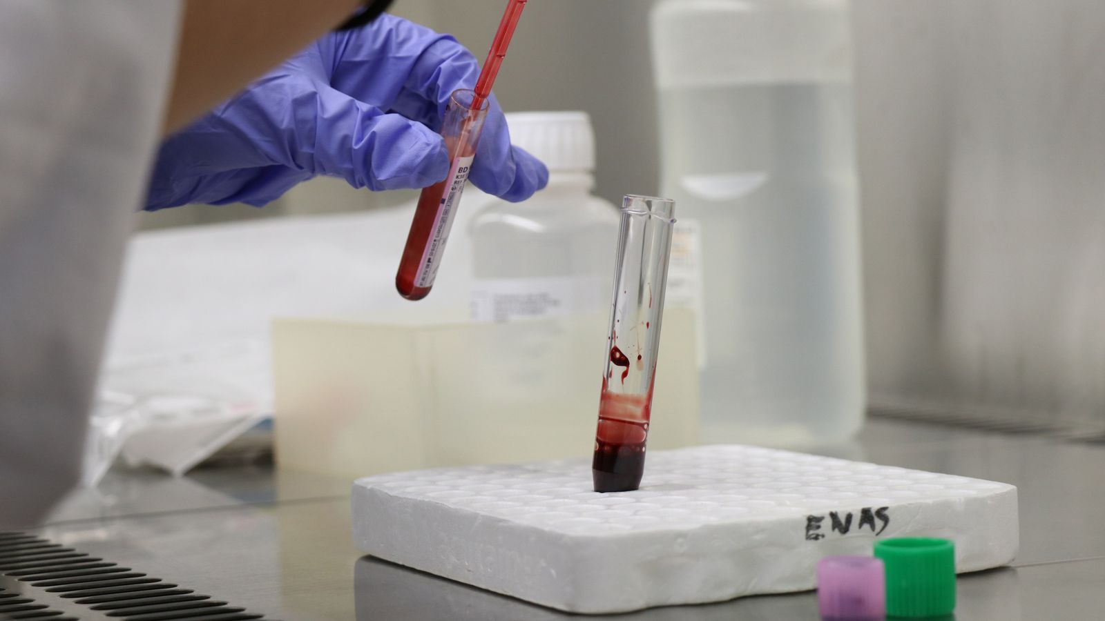 Cinc de cada deu persones de Balears són diagnosticades tard de VIH