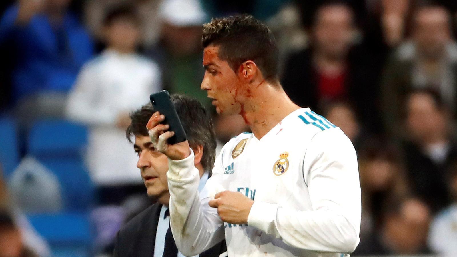 Cristiano ha acabat amb una ferida a la cara i s'ha mirat al mòbil del metge de l'equip