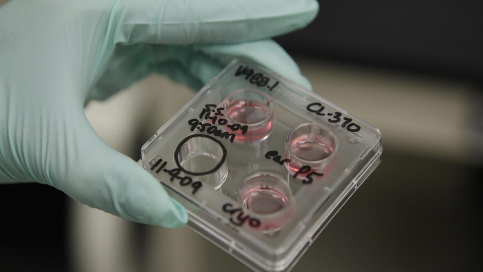 La cursa de la ciència per evitar l'atzar de l'herència genètica