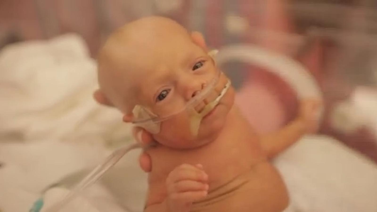 Internet s'emociona amb el vídeo que celebra el primer any de vida d'un nen prematur