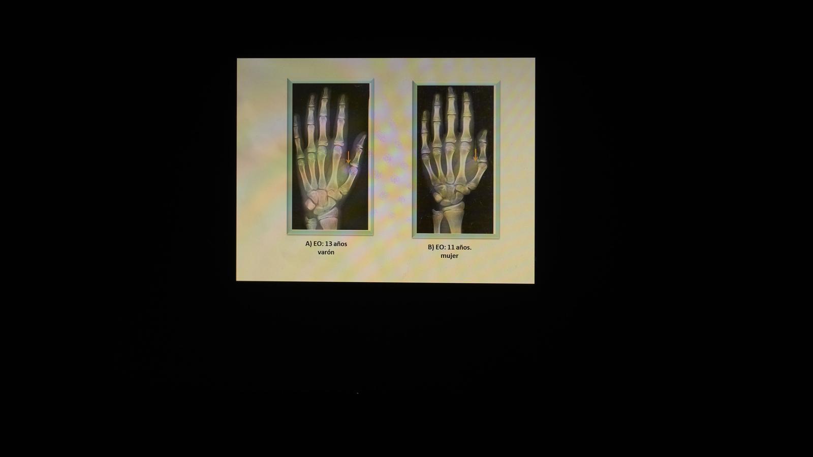Patrons de radiografies  utilitzats per comparar amb les mans dels menors i determinar-ne l'edat