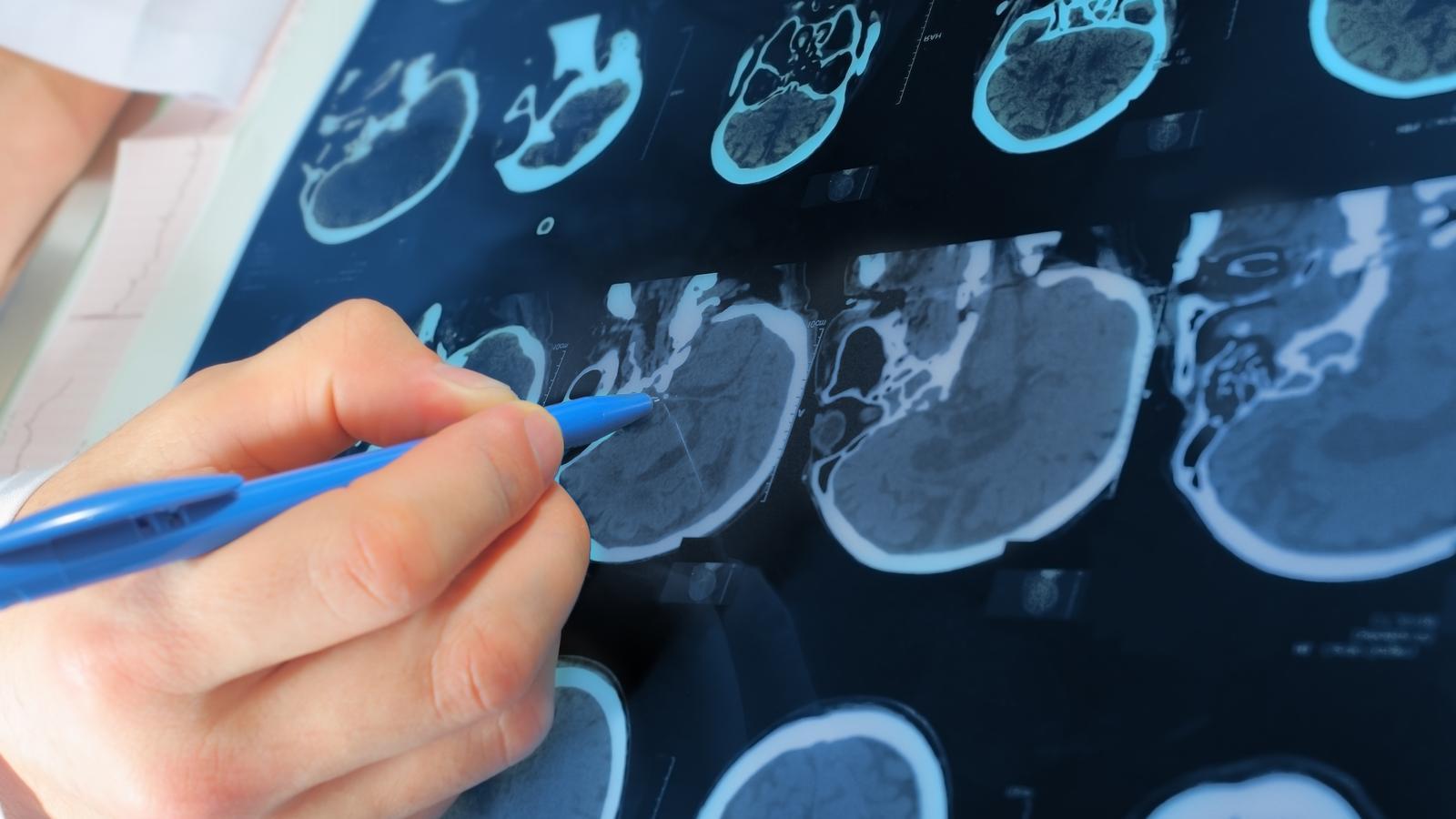 Un estudi vol identificar indicadors per ajudar a prevenir malalties neurològiques
