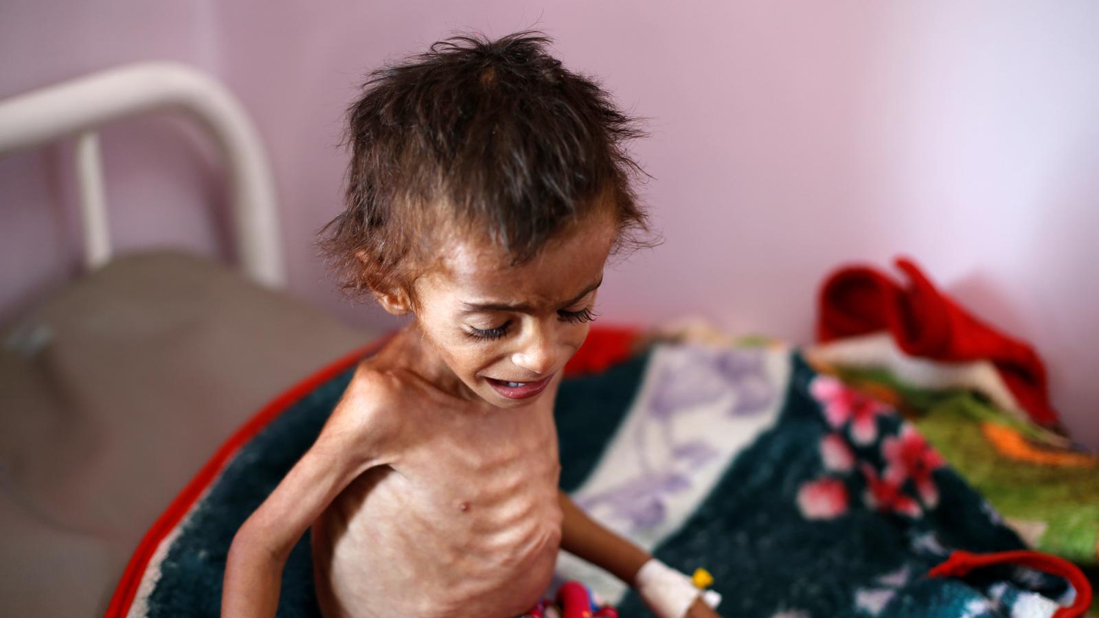 L'ONU alerta que el  50% de la població del Iemen pateix fam per la guerra