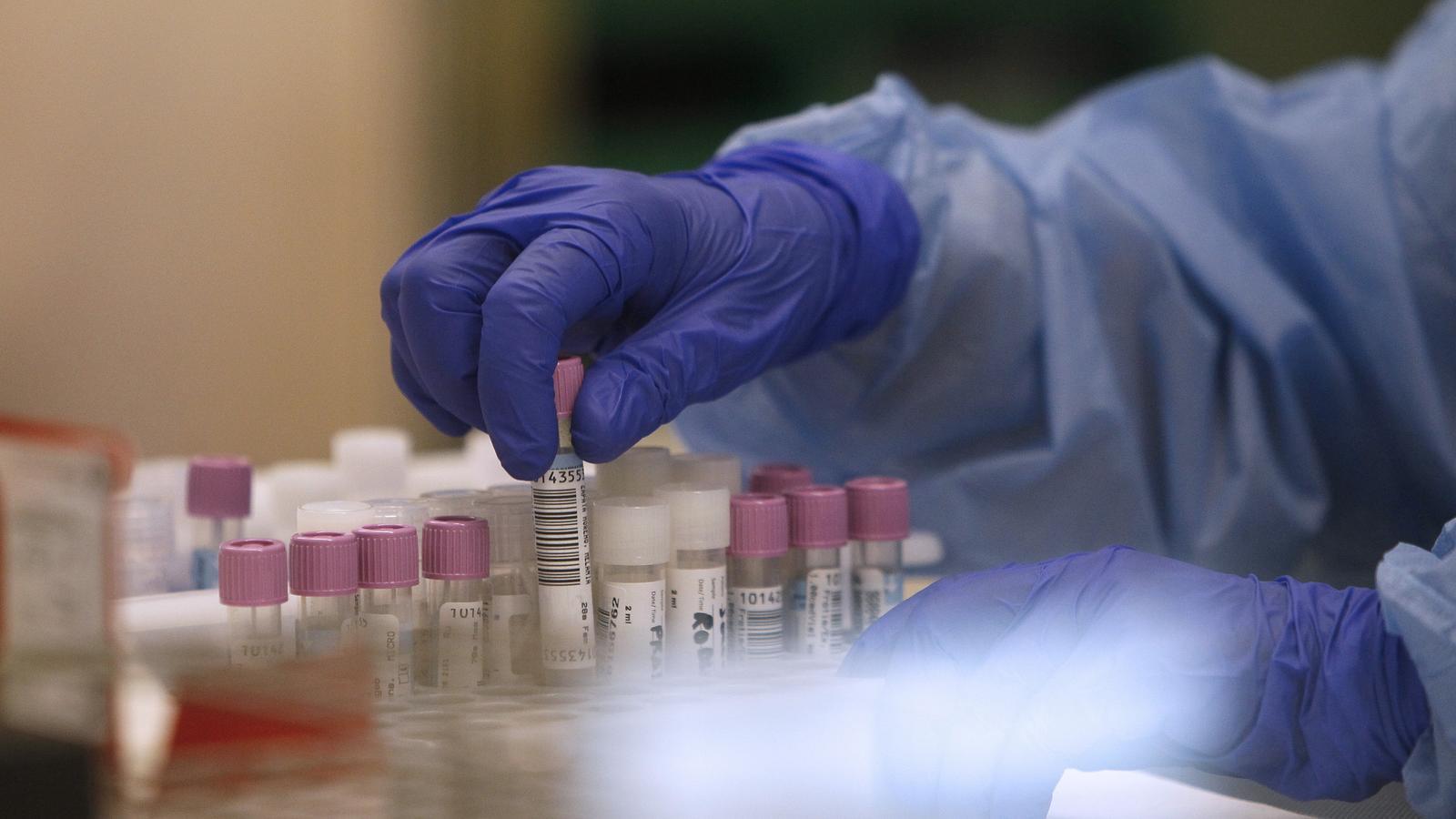 Imatge del laboratori de Son Espases, on s'analitzen les mostres de les PCR.