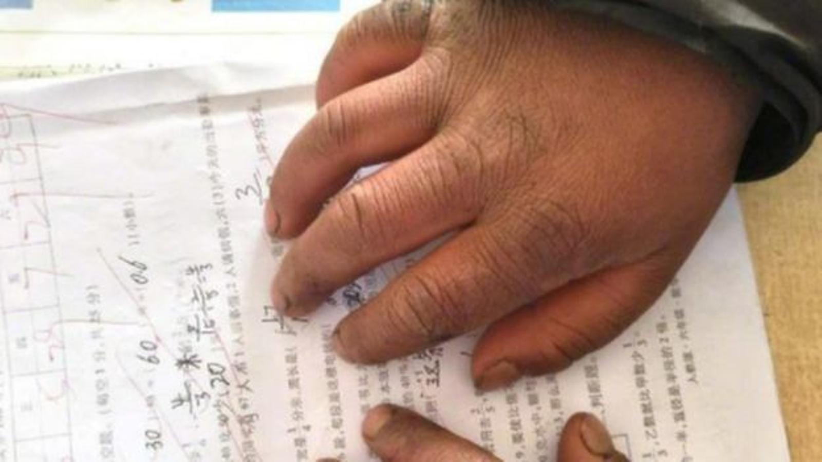 Wang va ser capaç d'obtenir una puntuació de 99 sobre 100 tot i tenir les mans congelades / THE PAPER