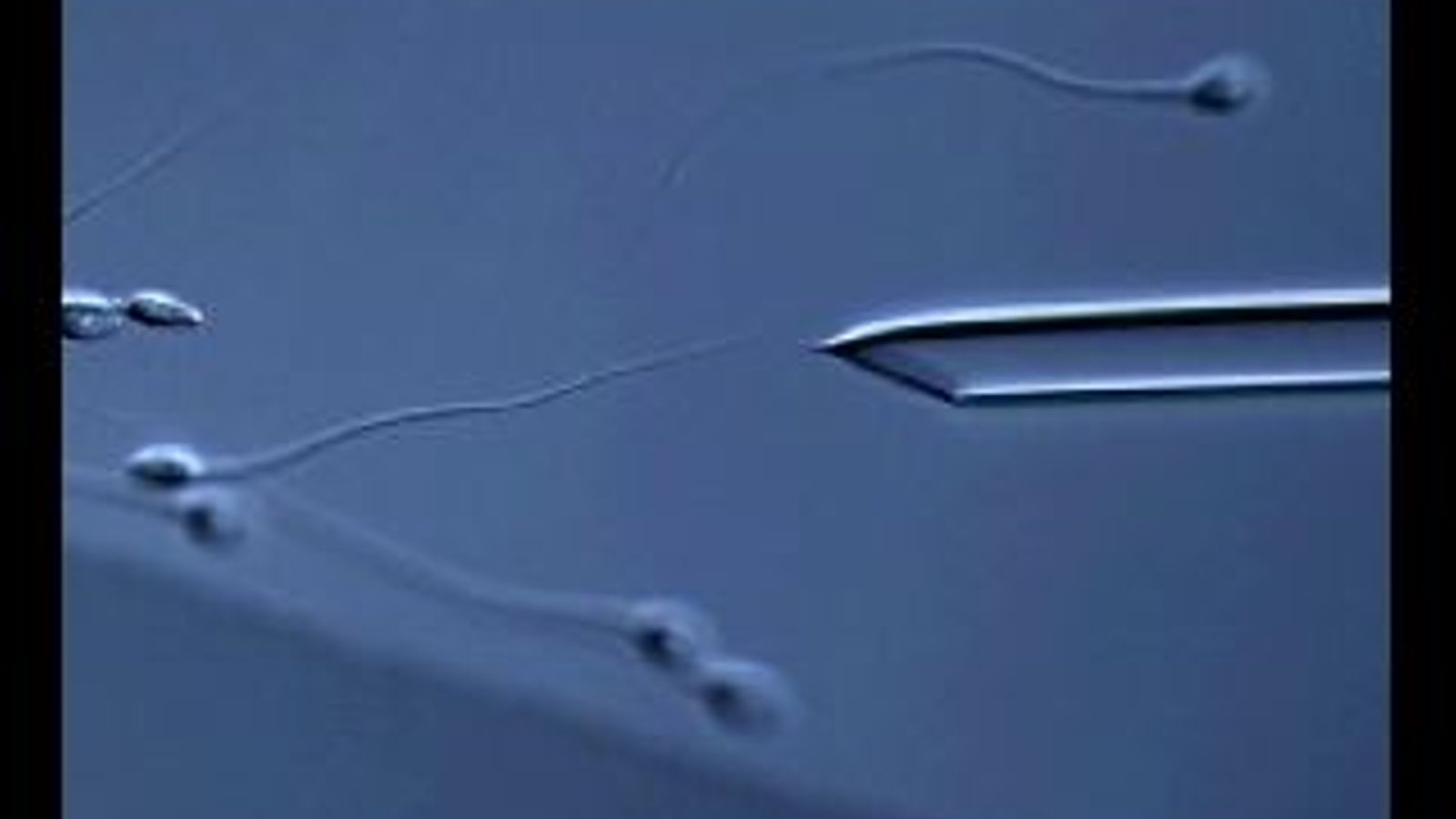 Selecció dels millors espermatozous per a una fecundació