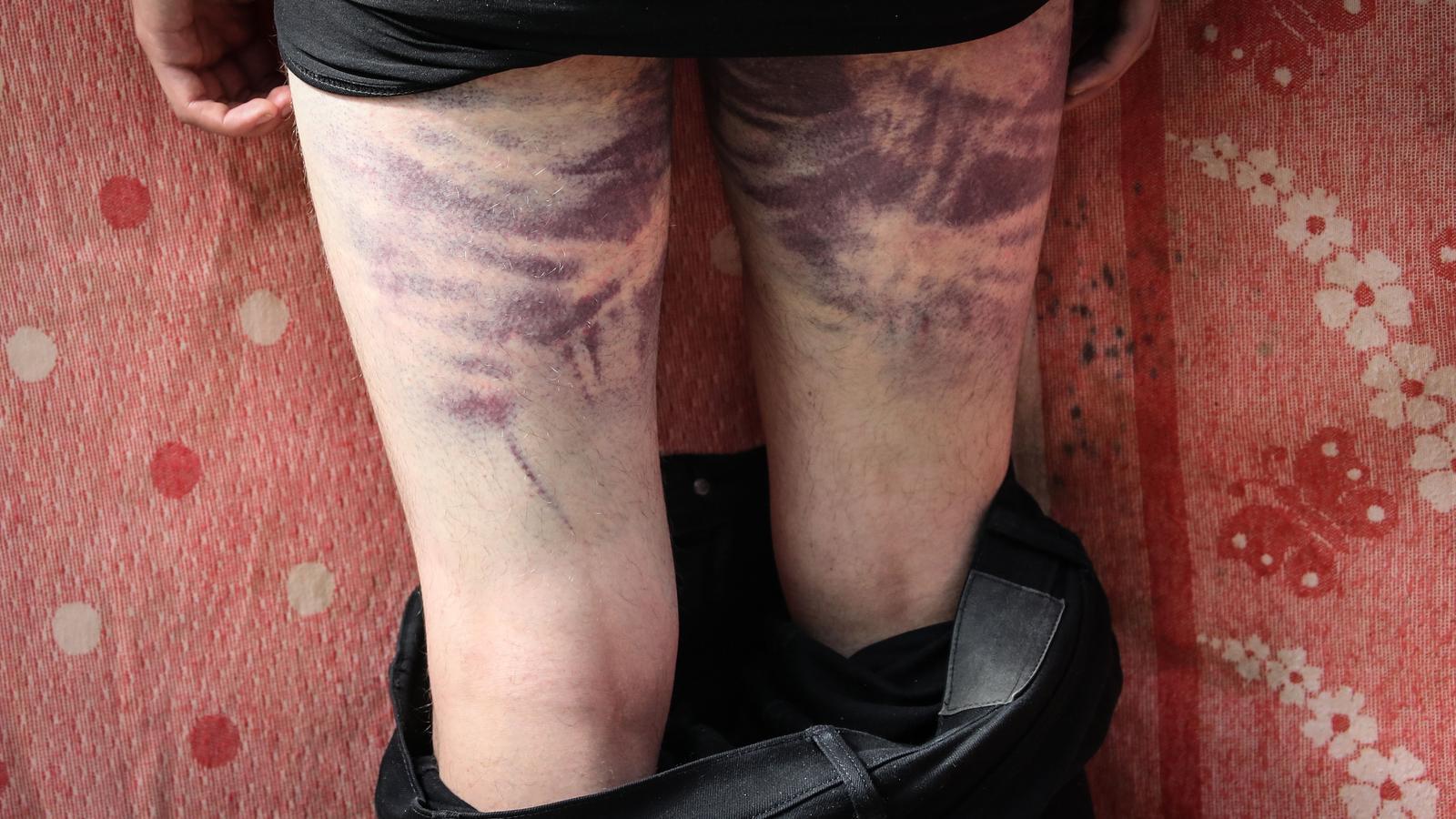 Blaus a les cames d'un detingut deixat en llibertat a Minsk aquest divendres