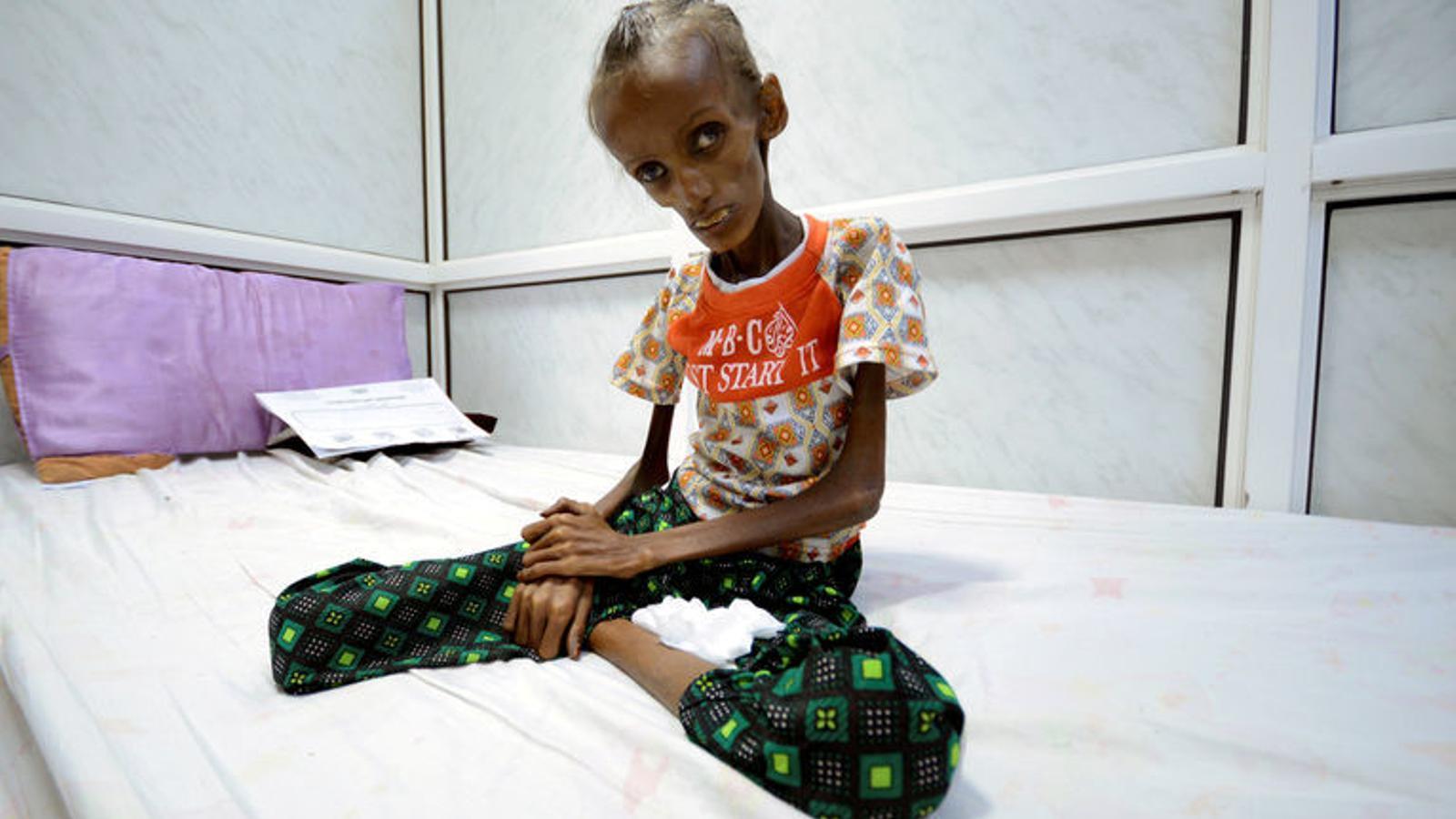 Fotogaleria: Sortir de la malnutrició severa al Iemen