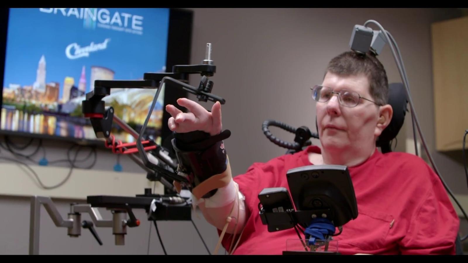 L'home amb paràlisi que pot moure els seus braços després de 10 anys