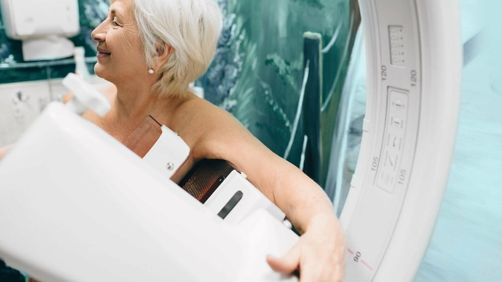 Identificat un gen director en el càncer de mama