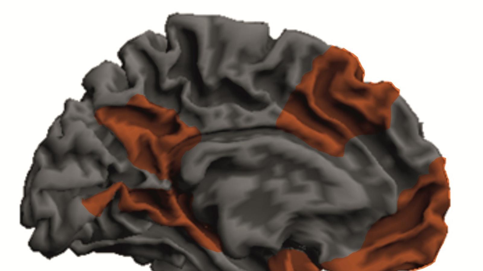 Representació del cervell d'una persona amb psicopatia. Les zones afectades estan destacades