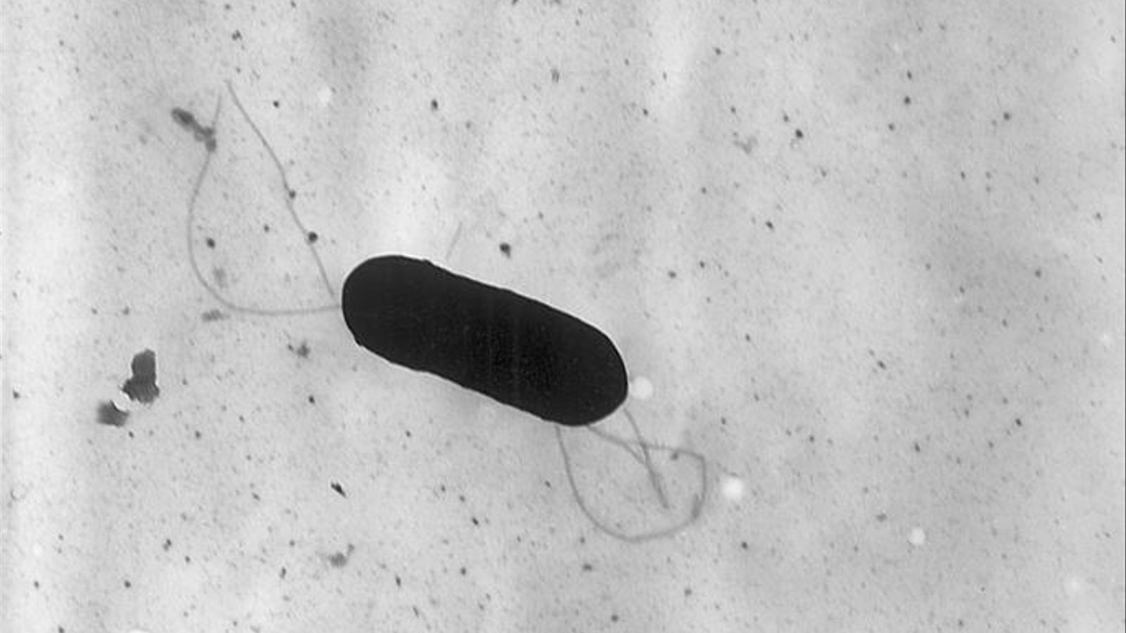 El bacteri 'Listeria monocytogenes'