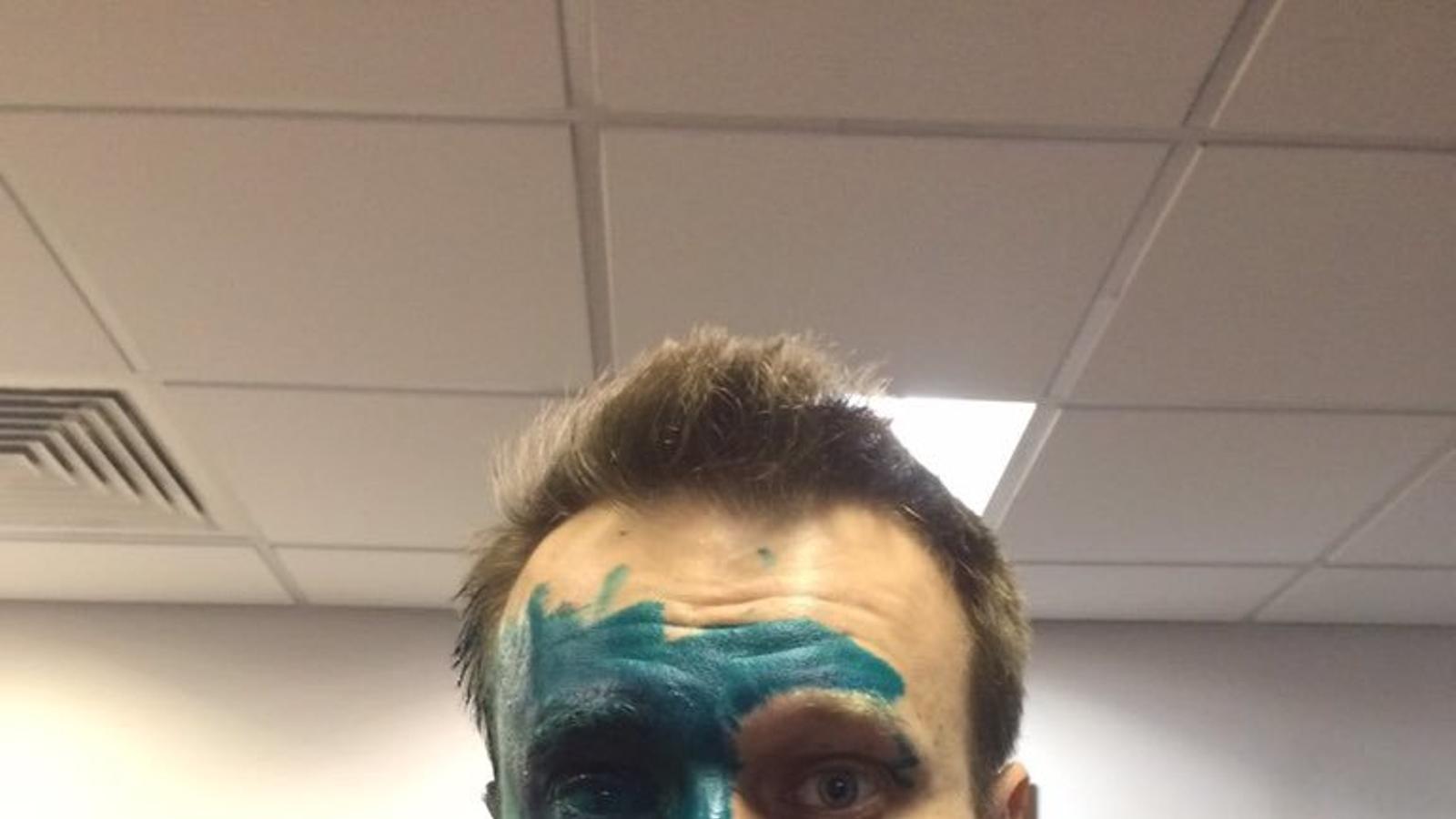 L'opositor rus Aleksei Navalni, atacat amb una substància verda