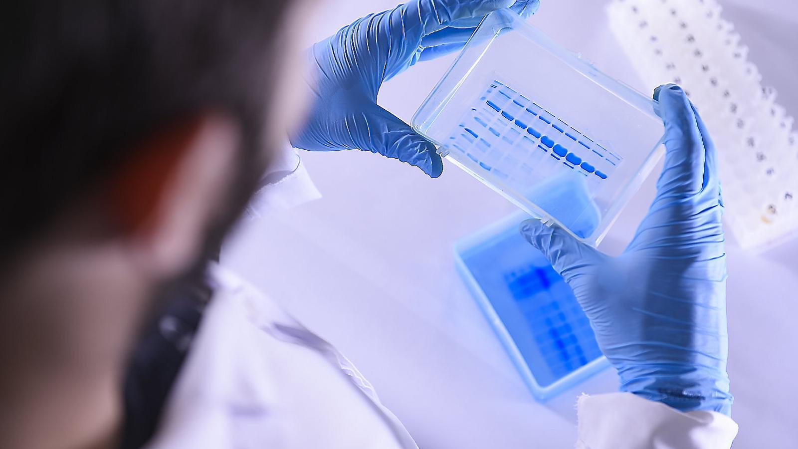 Anàlisi d'antigens amb un gel en un laboratori on es fa recerca per a la vacuna.