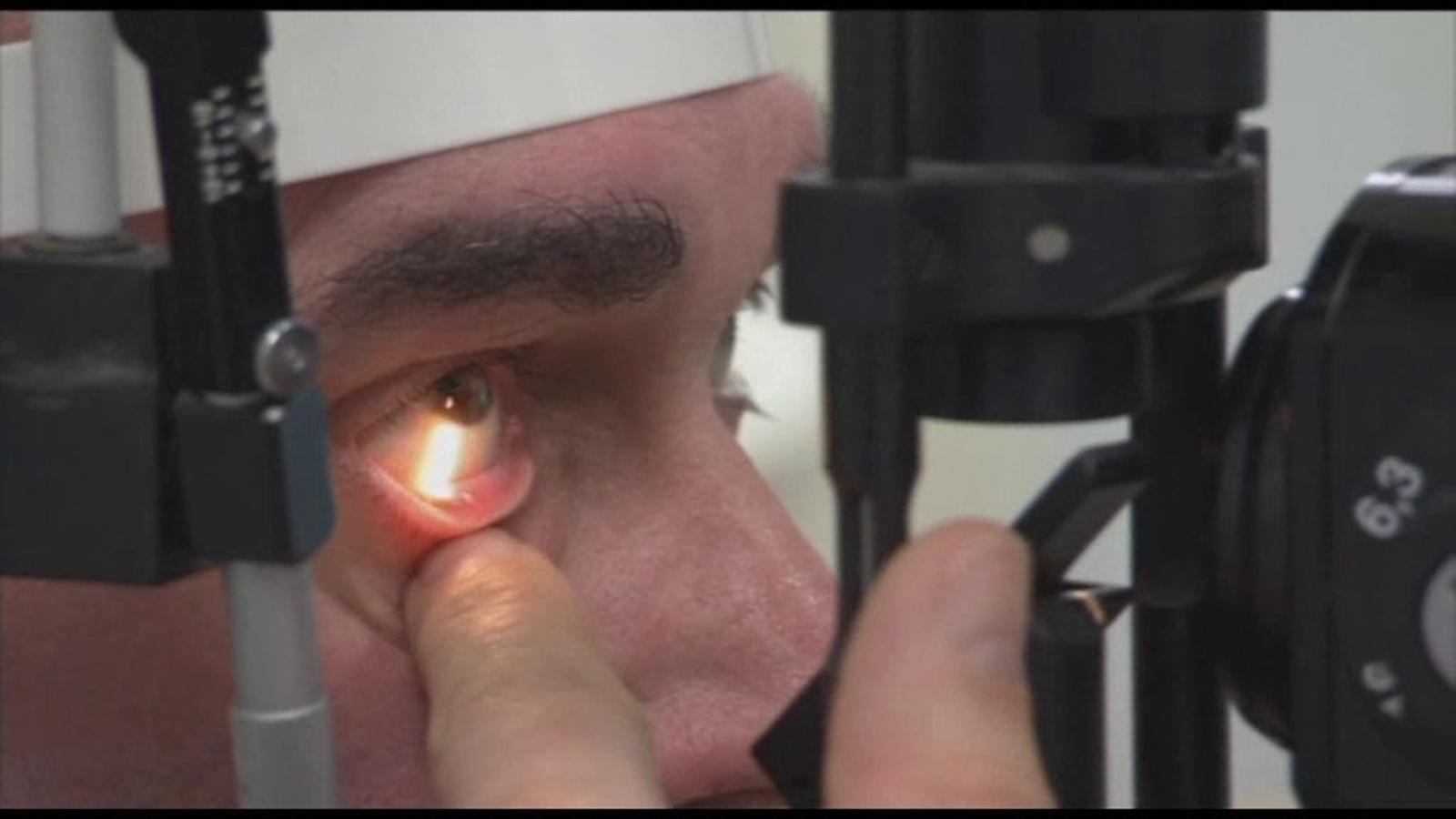 Implanten un ull biònic a un home cec del Regne Unit