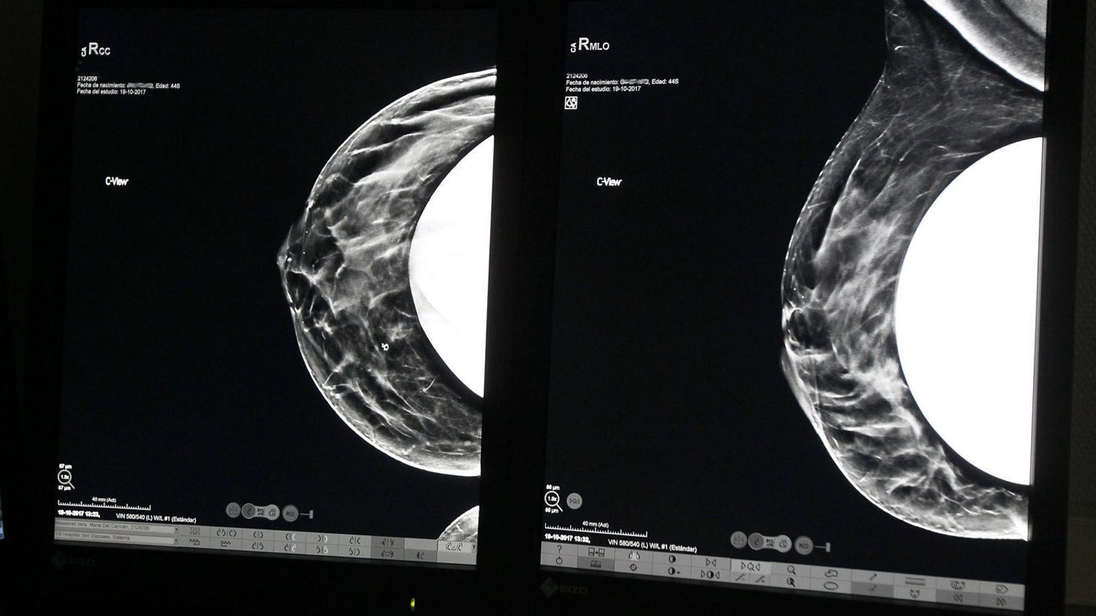 El Programa de Detecció Precoç cita biennalment les dones d'entre 50 i 69 anys per fer-se una mamografia.