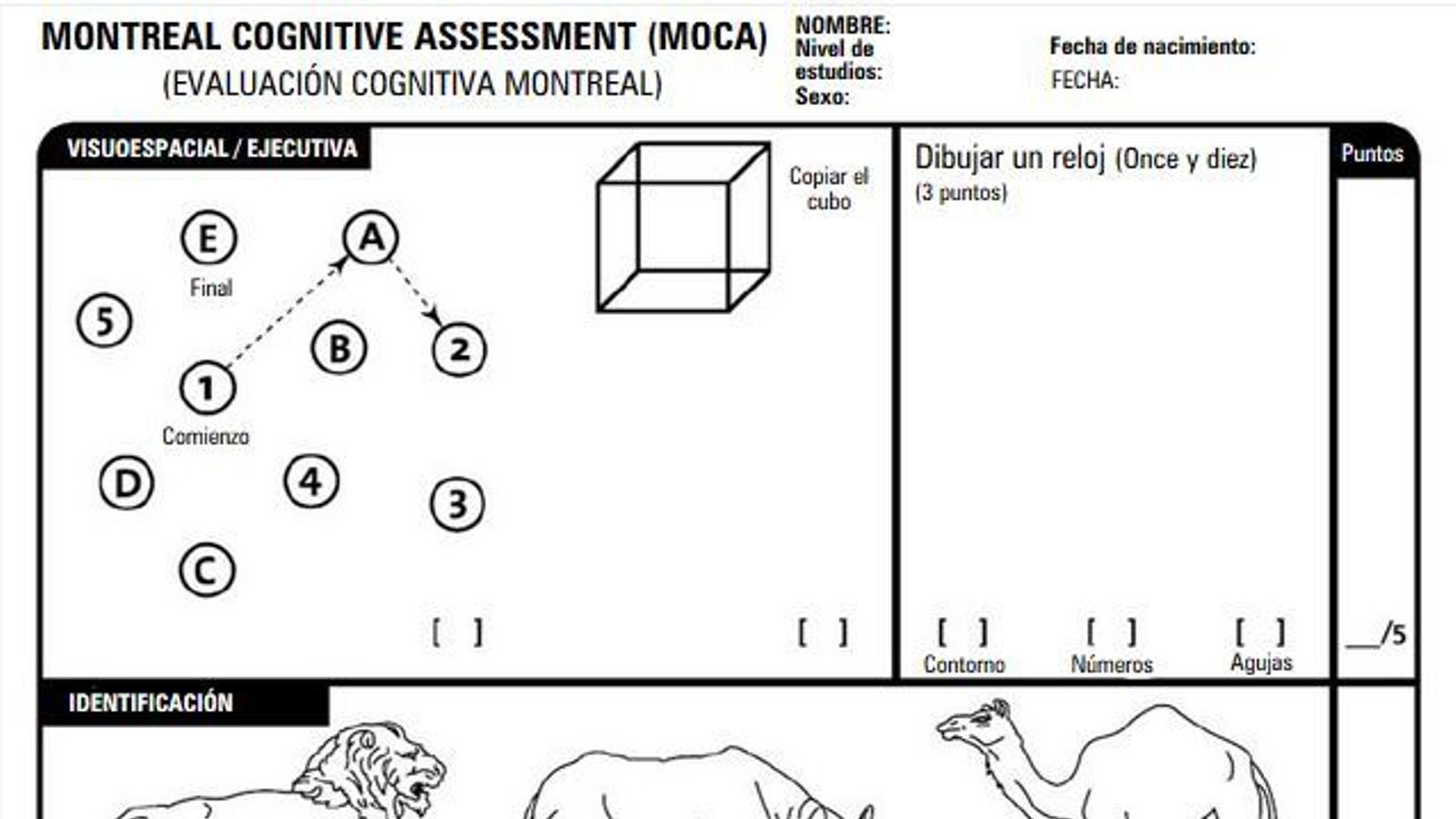 Test de Montreal sobre demència